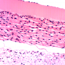 Appendicitis - Omano OMSK-HP50 Human Pathology