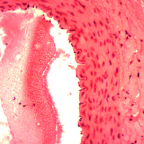 Artery Section - Omano OMSK-4 Five Kingdom Slides