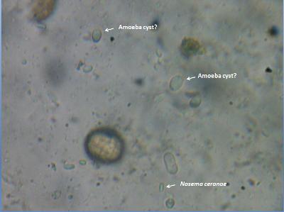 Amoeba Cyst